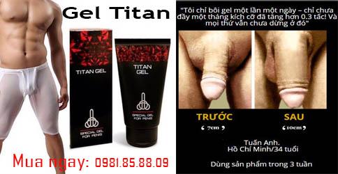 Kết quả trước và sau khi sử dụng gel titan nga